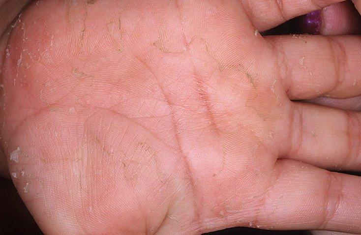 Datiranje nakon genitalnih bradavica